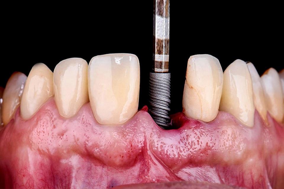 sin diente